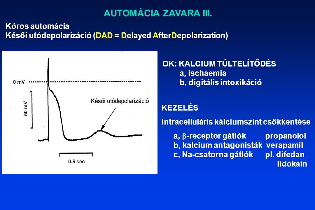 AUTOMÁCIA ZAVARA III. Kóros automácia Késői utódepolarizáció (DAD = Delayed AfterDepolarization) OK: KALCIUM TÚLTELÍTŐDÉS a, ischaemia b, digitális in