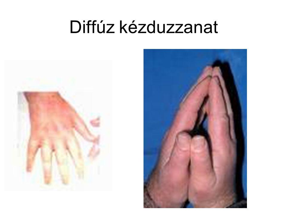 Diffúz kézduzzanat