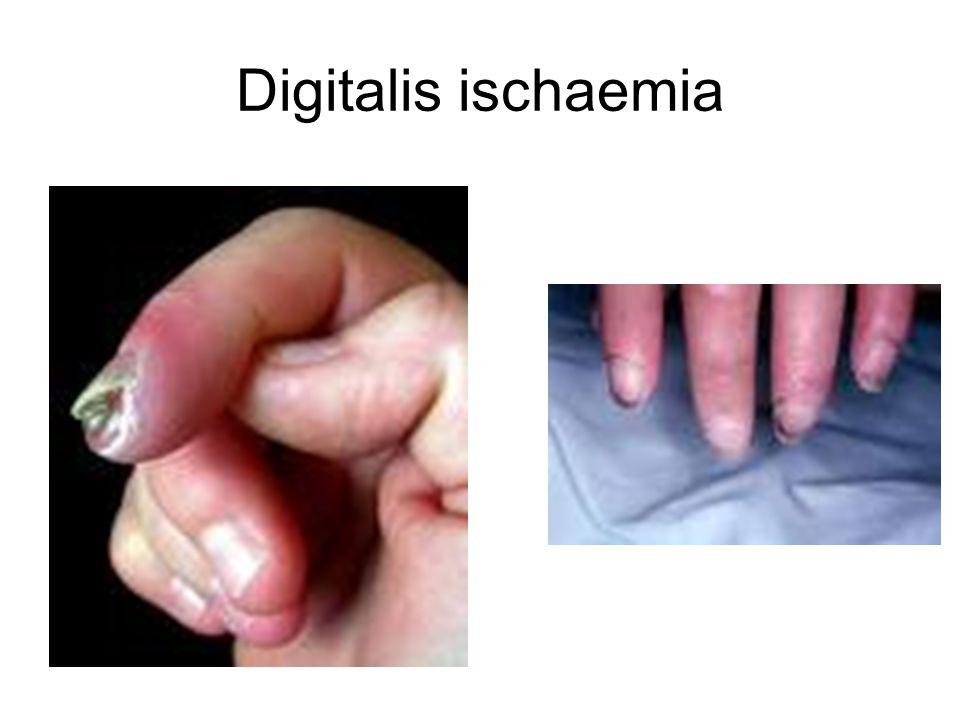 Klinikai tünetek II.
