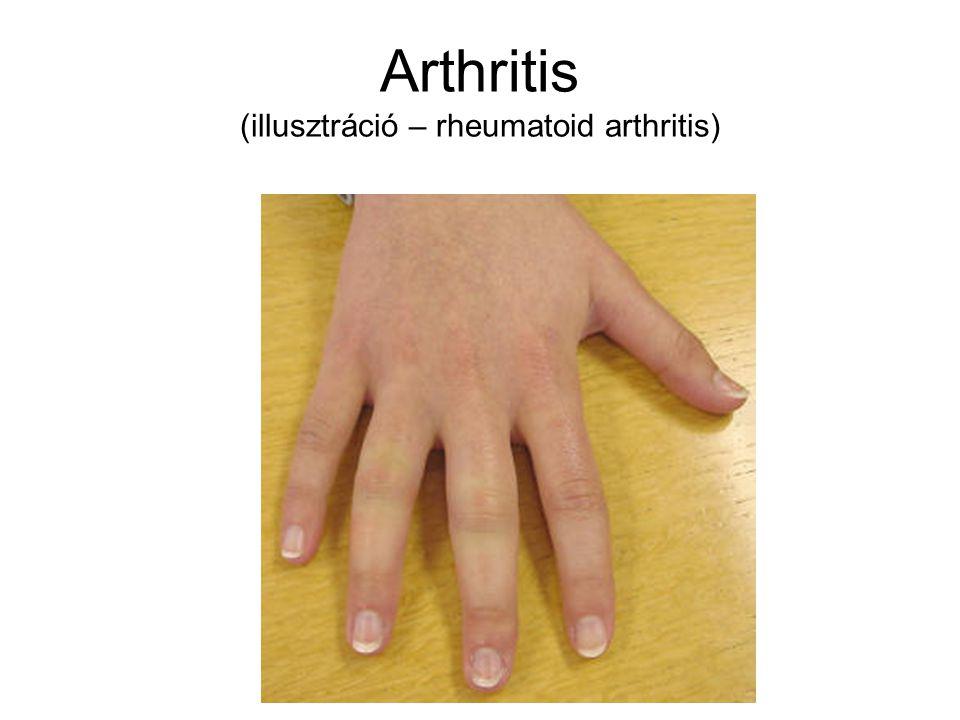Arthritis illusztráció - köszvény