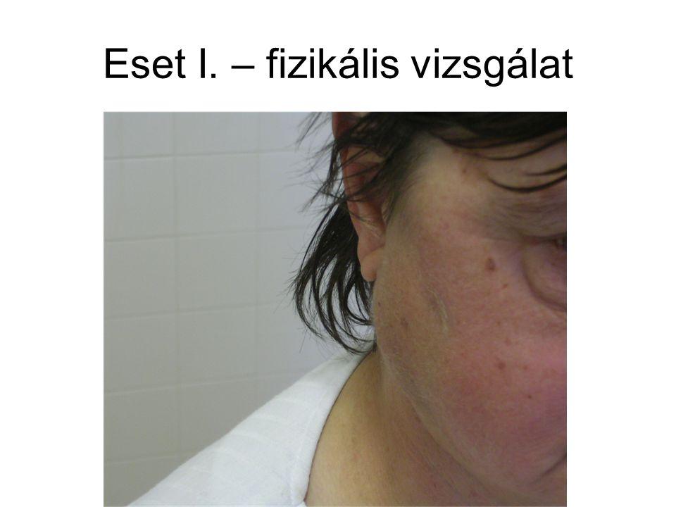 Sjögren syndroma - xerostomia