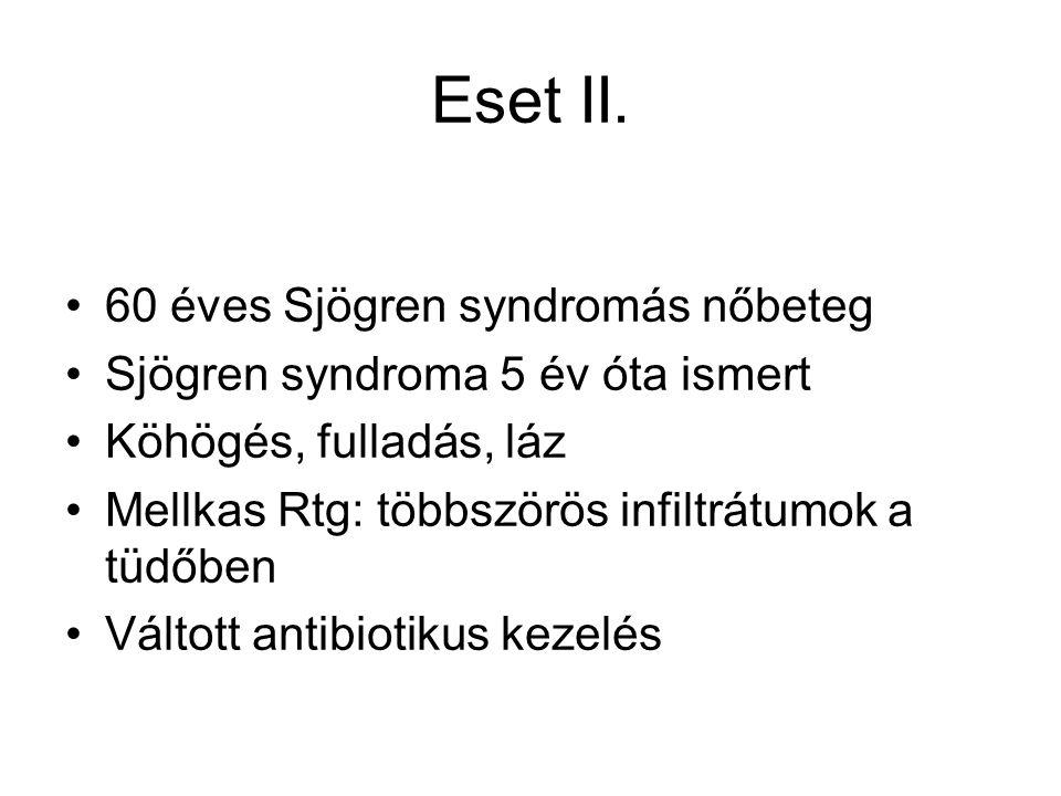 Eset II.
