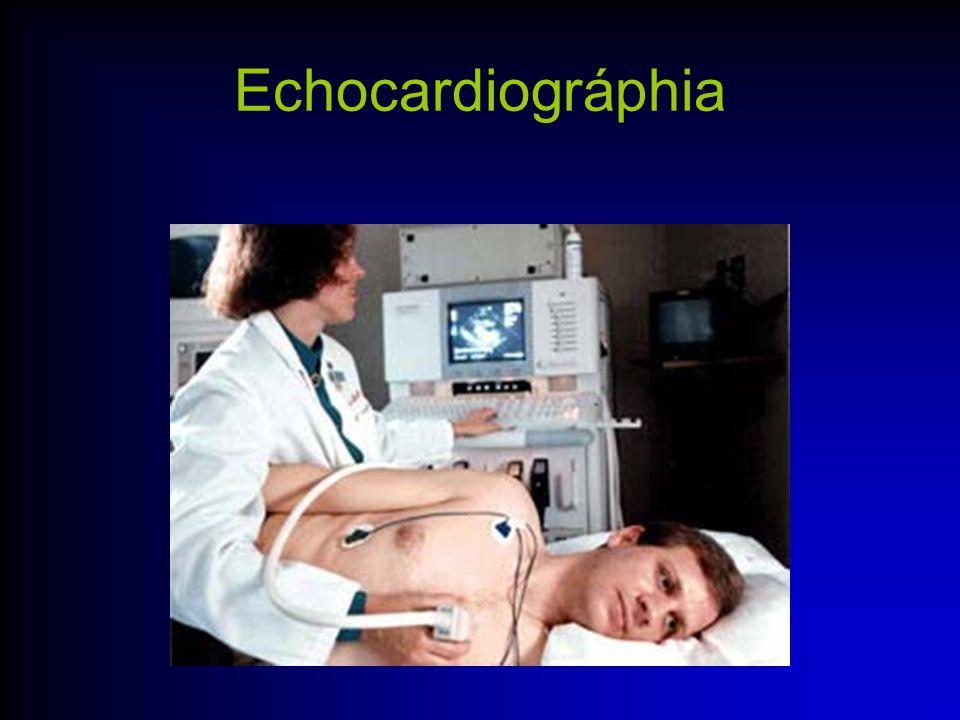 Echocardiográphia