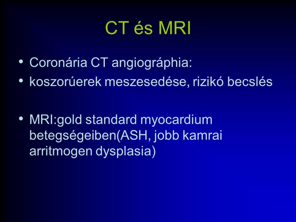 CT és MRI Coronária CT angiográphia: koszorúerek meszesedése, rizikó becslés MRI:gold standard myocardium betegségeiben(ASH, jobb kamrai arritmogen dy