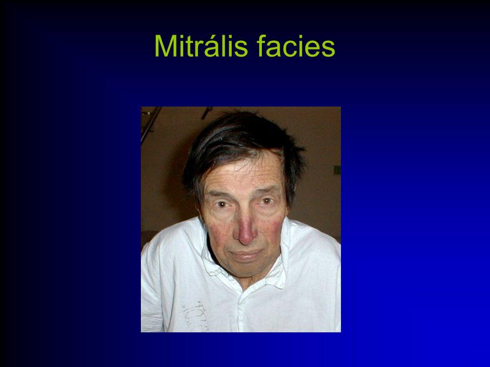 Auscultatio –Hallgatózási pontok: –Aorta:2R2 –Pulmonalis:2L2 –Mitrális:4L2, szívcsúcs –Tricuspidalis:4R2 –Aorta insuff:M3 –Carotisok, jugulum, hónalj árok –Radiális pulzus tapintása