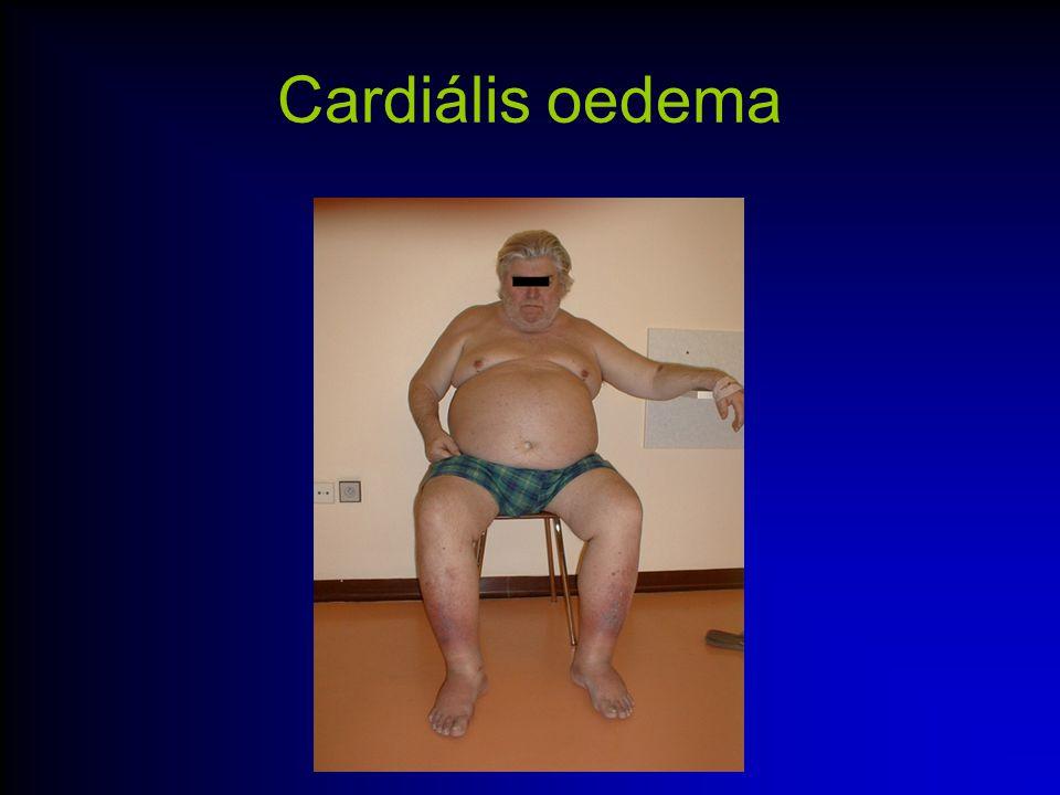 echocardiográphia A sziv morfológiájáról, üreg méretek Szivbillentyűk funkcioja BK funkcioja( systoles EF, diastoles ) Falmozgászavarok Áramlási sebességek TEE Intracardiális echo