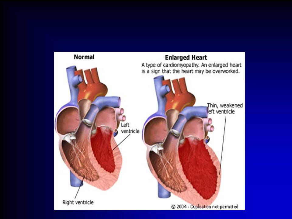 Electrocardiographia Standard 12 elvezetés:bipolaris I, II, III, 3 augmentált unipolaris elvezetés: aV R, aV L, aV F, praecordialis unipolaris elvezetés: V 1 – V 6.