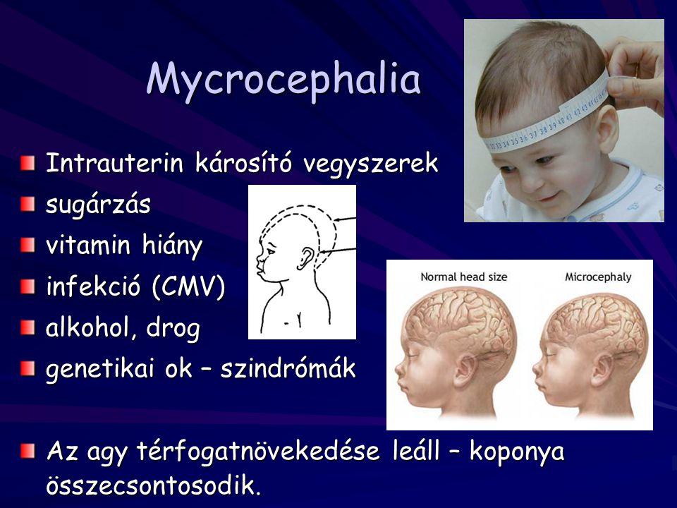 Mycrocephalia Intrauterin károsító vegyszerek sugárzás vitamin hiány infekció (CMV) alkohol, drog genetikai ok – szindrómák Az agy térfogatnövekedése