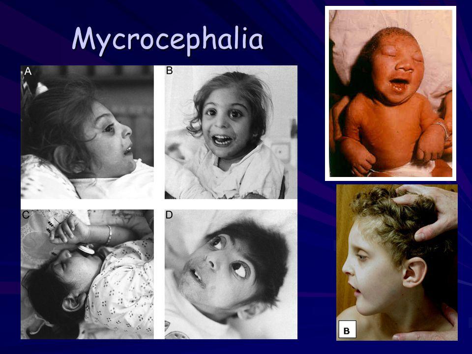 Mycrocephalia