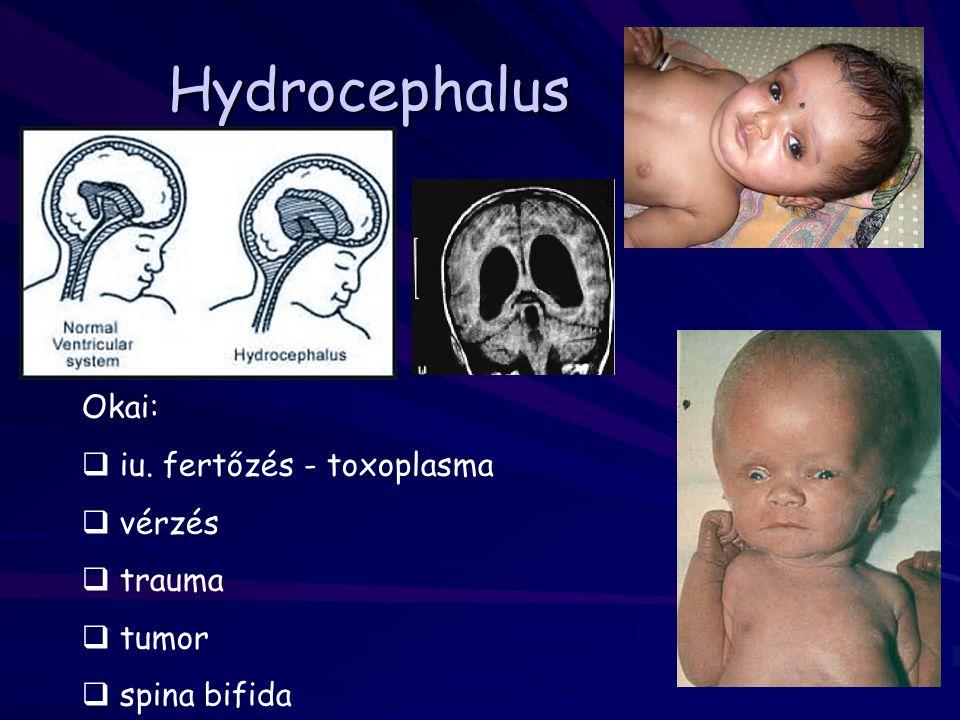 Hydrocephalus Okai:  iu. fertőzés - toxoplasma  vérzés  trauma  tumor  spina bifida