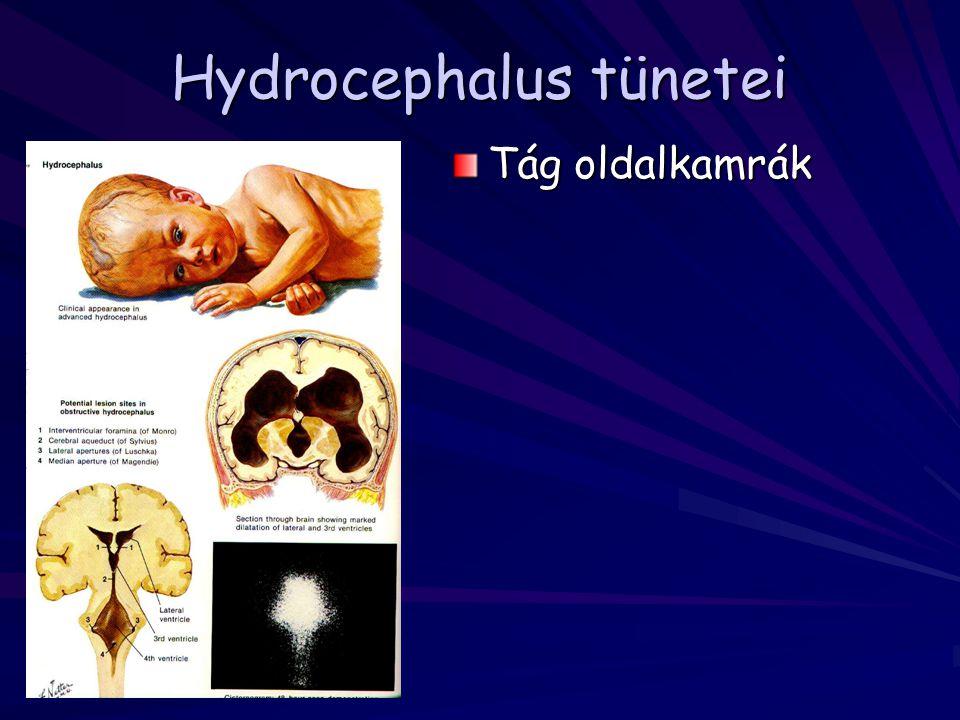 Hydrocephalus tünetei Tág oldalkamrák