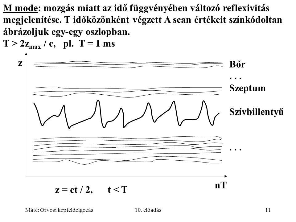 Máté: Orvosi képfeldolgozás10. előadás11 M mode: mozgás miatt az idő függvényében változó reflexivitás megjelenítése. T időközönként végzett A scan ér