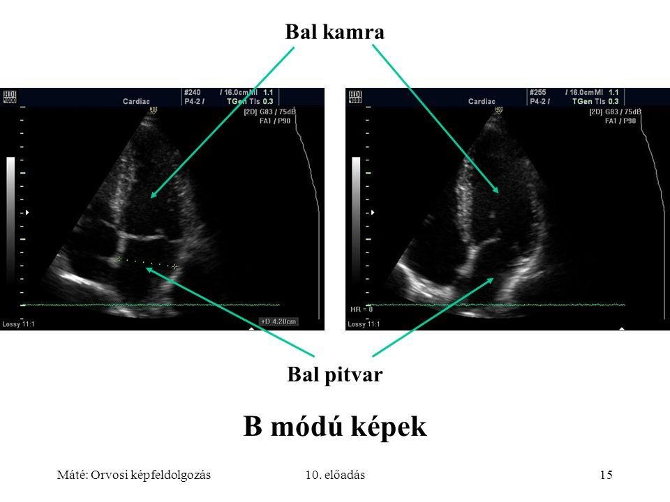 Máté: Orvosi képfeldolgozás10. előadás15 B módú képek Bal kamra Bal pitvar