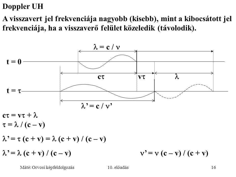 Máté: Orvosi képfeldolgozás10. előadás16 c  = v  +  = / (c – v) ' =  (c + v) = (c + v) / (c – v) ' = (c + v) / (c – v) ' = (c – v) / (c + v) Doppl