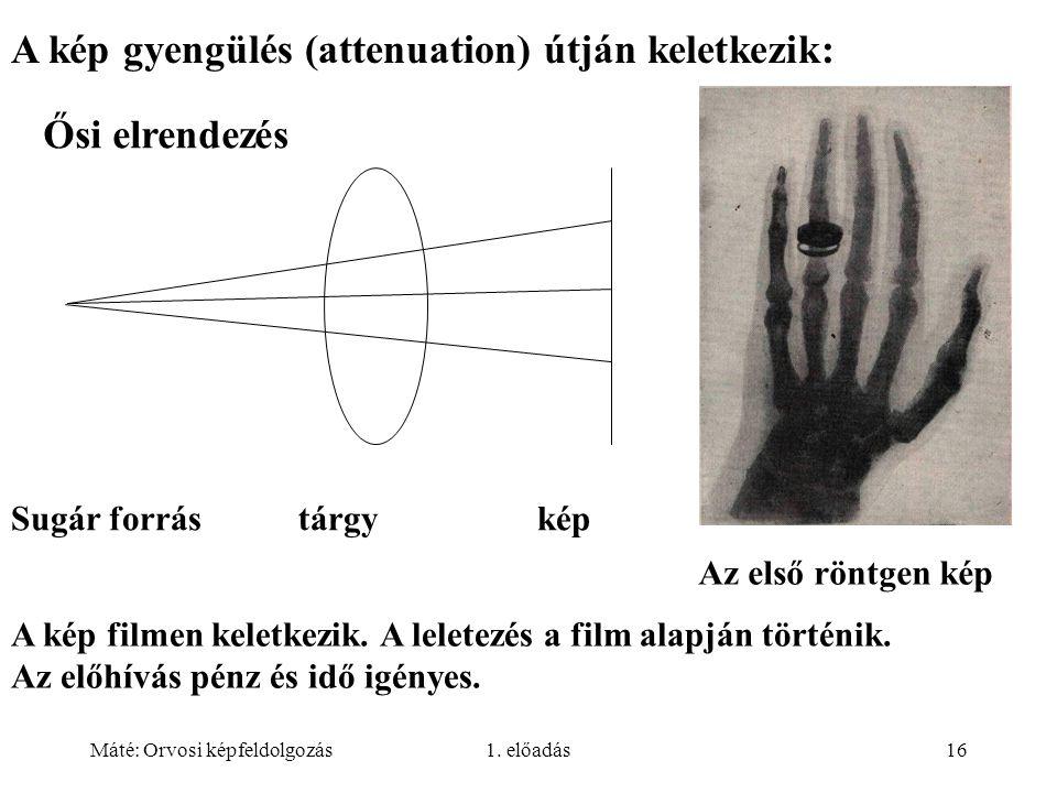 Máté: Orvosi képfeldolgozás1. előadás16 A kép gyengülés (attenuation) útján keletkezik: Sugár forrás tárgy kép Az első röntgen kép A kép filmen keletk