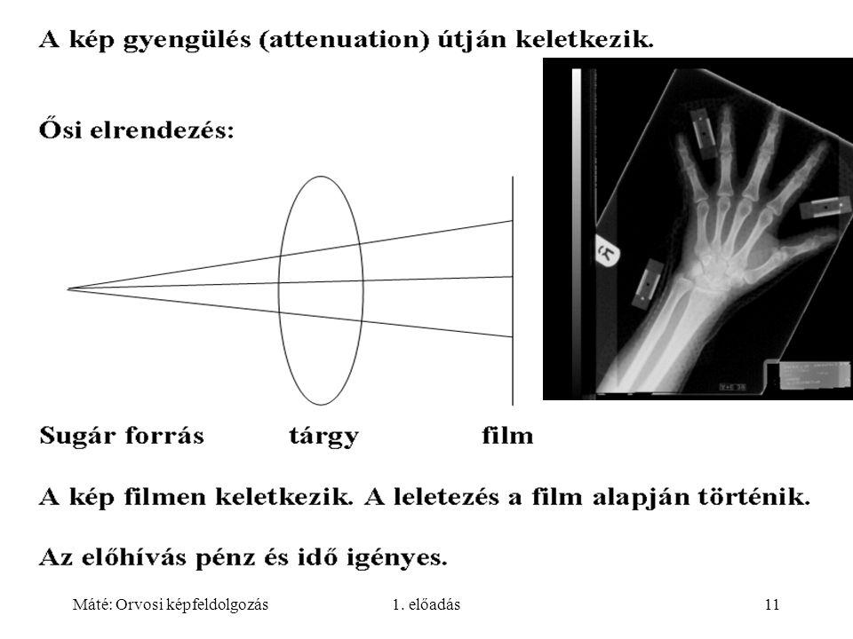 Máté: Orvosi képfeldolgozás1. előadás11
