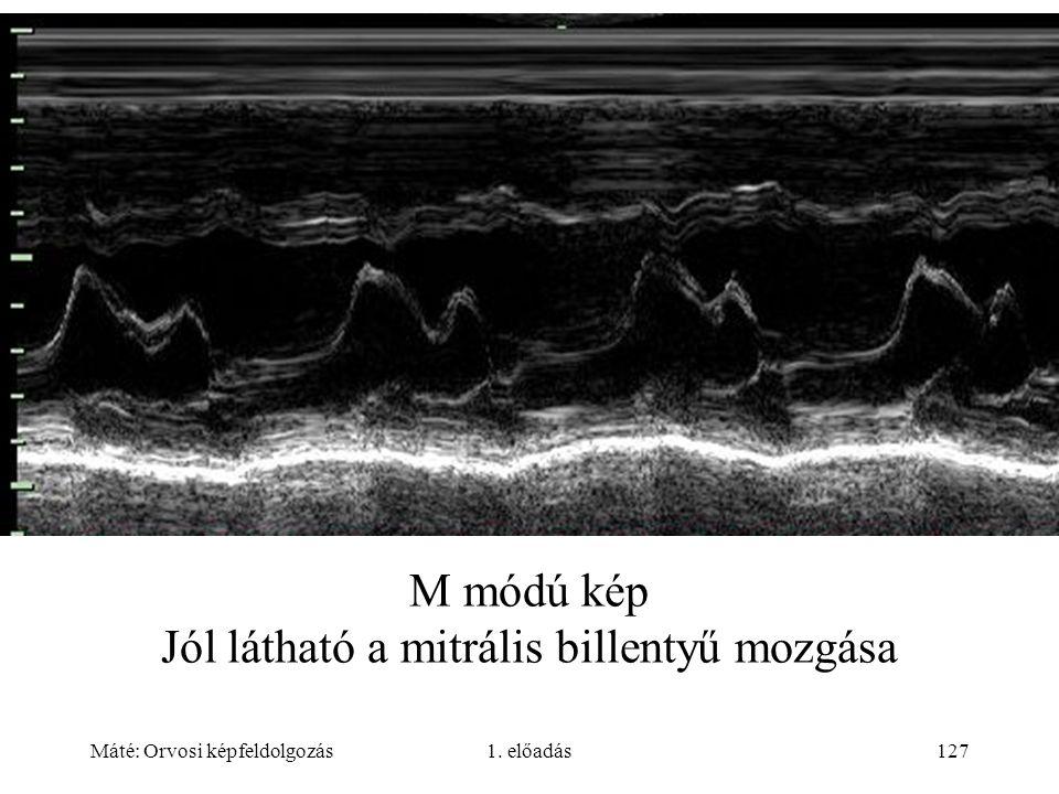 Máté: Orvosi képfeldolgozás1. előadás127 M módú kép Jól látható a mitrális billentyű mozgása
