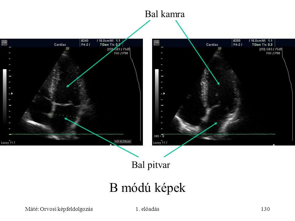 Máté: Orvosi képfeldolgozás1. előadás130 B módú képek Bal kamra Bal pitvar