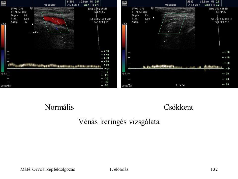 Máté: Orvosi képfeldolgozás1. előadás132 NormálisCsökkent Vénás keringés vizsgálata