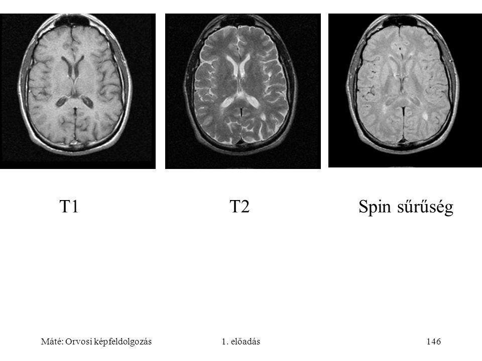 Máté: Orvosi képfeldolgozás1. előadás146 T1 T2 Spin sűrűség