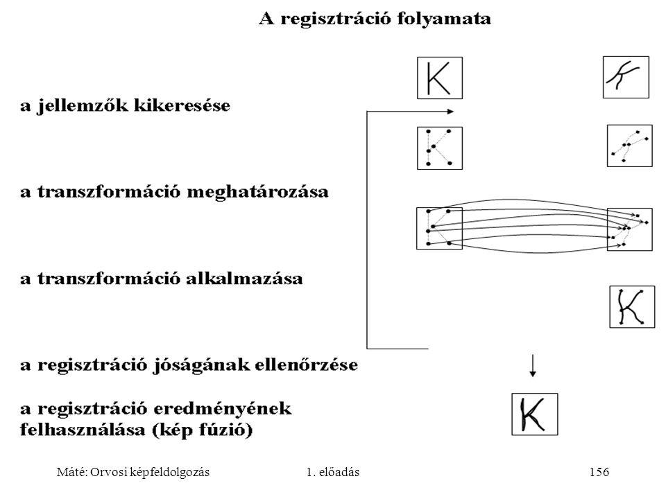 Máté: Orvosi képfeldolgozás1. előadás156