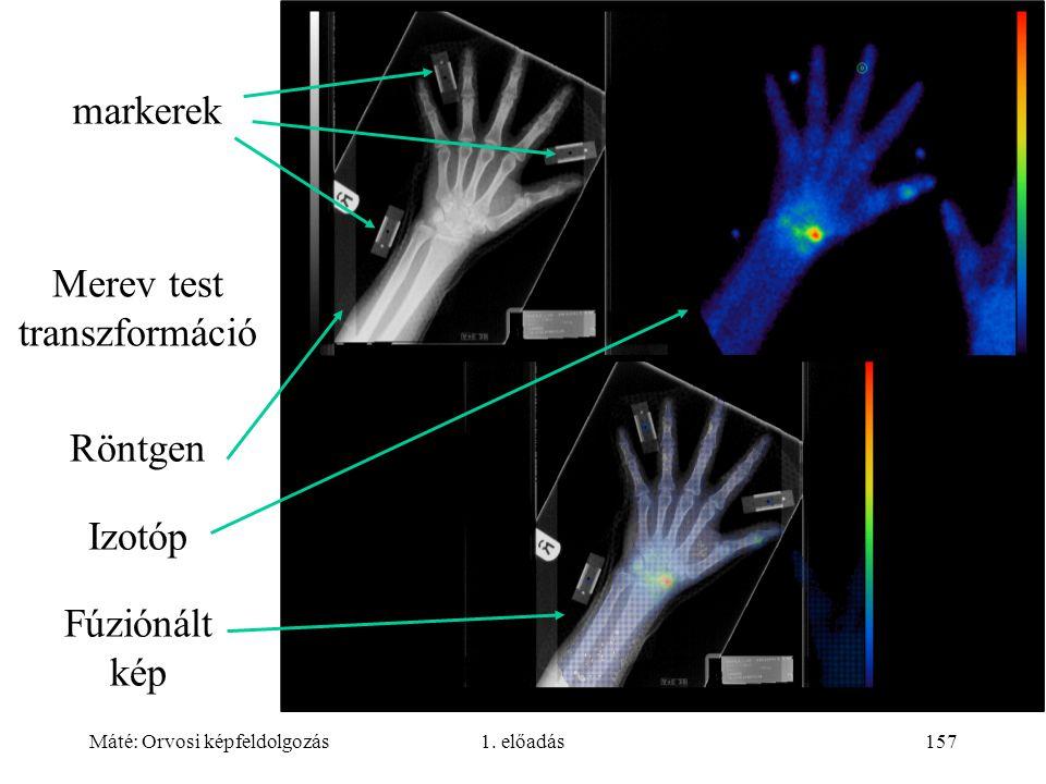 Máté: Orvosi képfeldolgozás1. előadás157 markerek Merev test transzformáció Röntgen Izotóp Fúziónált kép