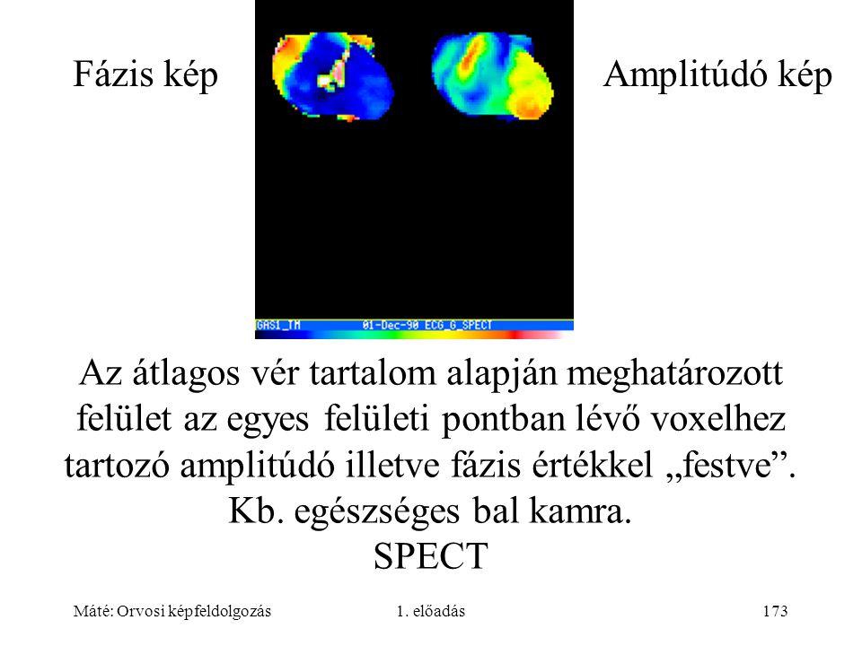 Máté: Orvosi képfeldolgozás1. előadás173 Az átlagos vér tartalom alapján meghatározott felület az egyes felületi pontban lévő voxelhez tartozó amplitú