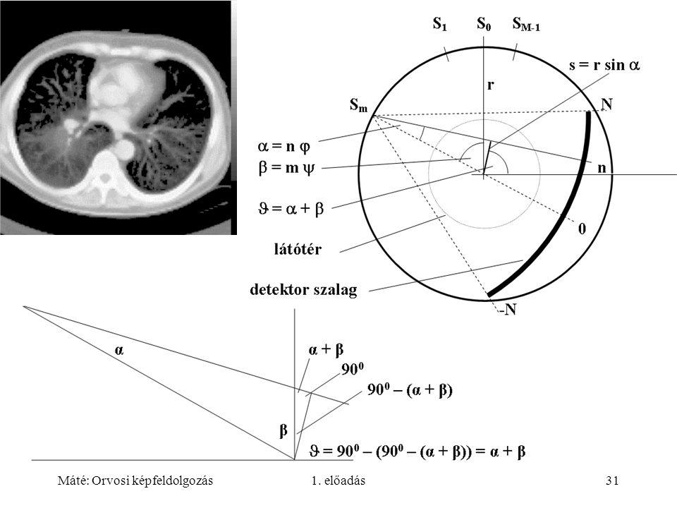 Máté: Orvosi képfeldolgozás1. előadás31