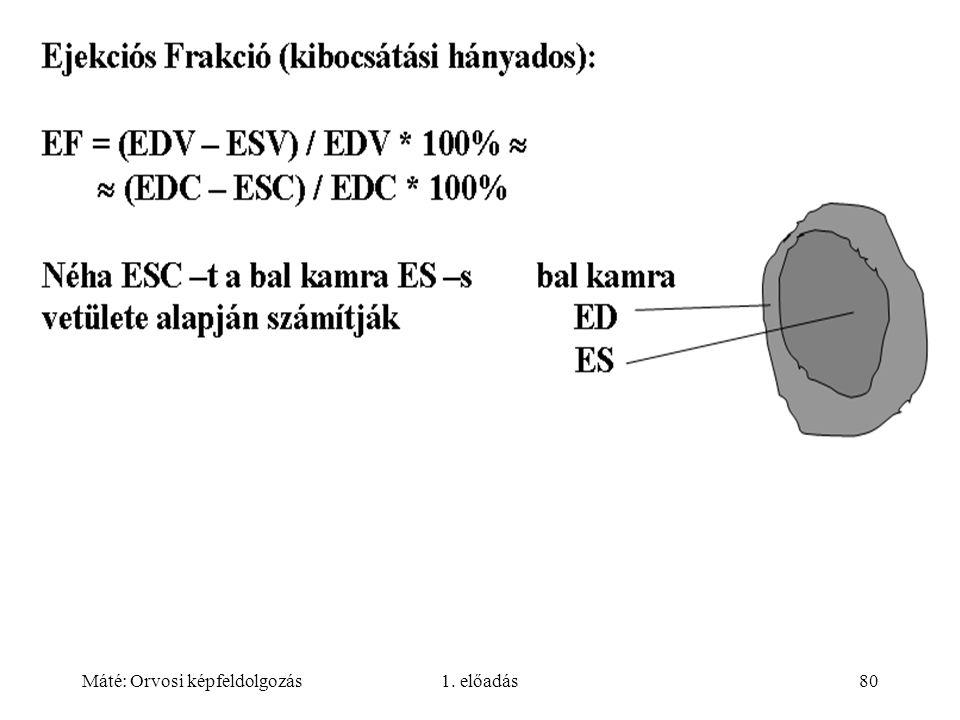 Máté: Orvosi képfeldolgozás1. előadás80