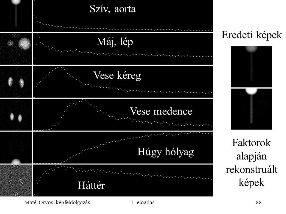 Máté: Orvosi képfeldolgozás1. előadás88 Eredeti képek Faktorok alapján rekonstruált képek Szív, aorta Máj, lép Vese kéreg Vese medence Húgy hólyag Hát