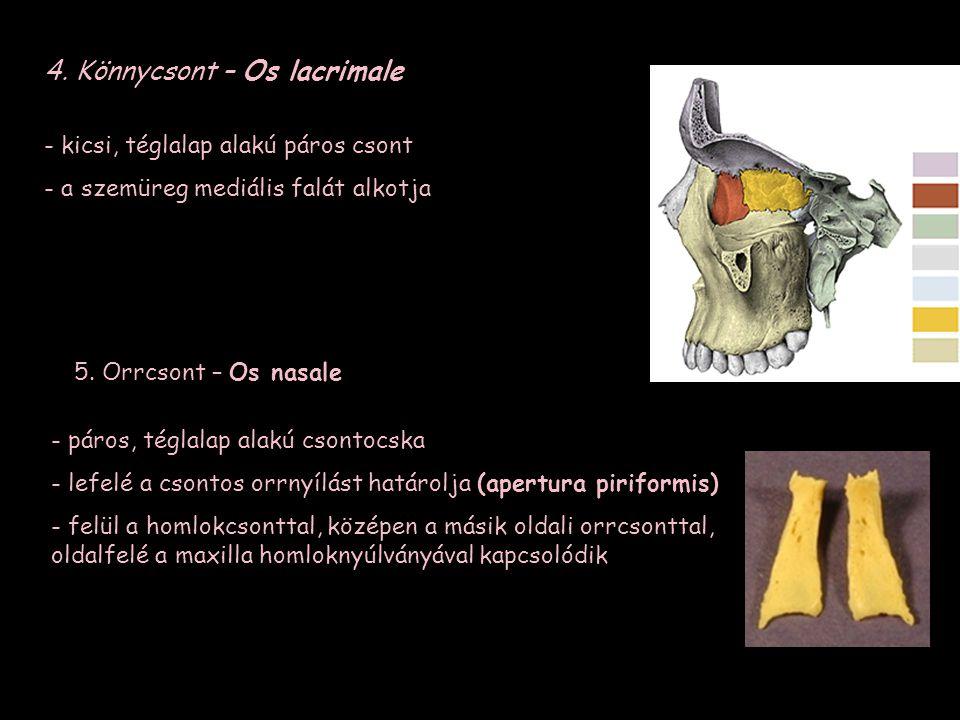 4. Könnycsont – Os lacrimale 5. Orrcsont – Os nasale - páros, téglalap alakú csontocska - lefelé a csontos orrnyílást határolja (apertura piriformis)