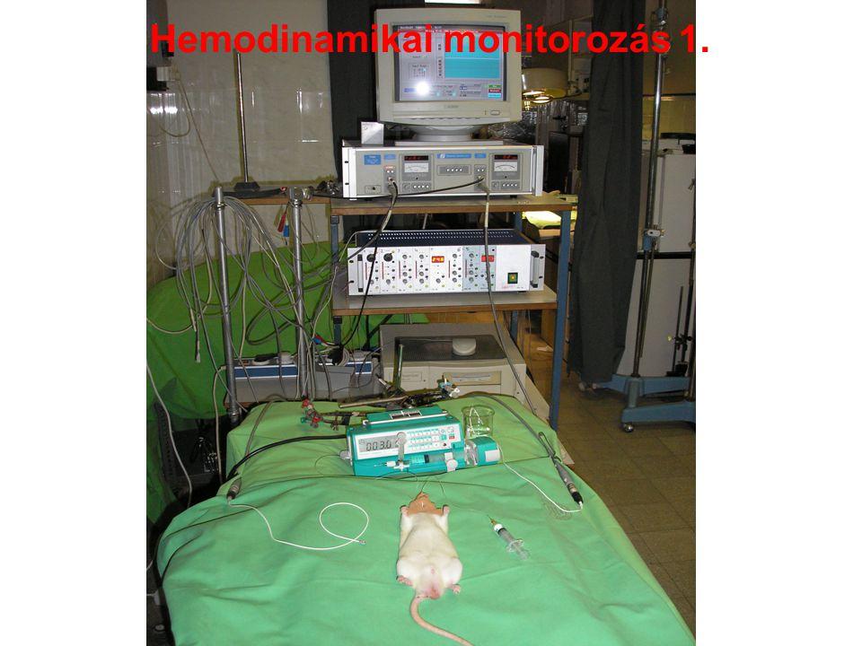 Hemodinamikai monitorozás 1.