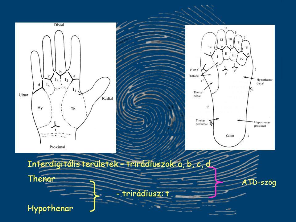 Interdigitális területek – trirádiuszok: a, b, c, d, Thenar - trirádiusz: t Hypothenar ATD-szög