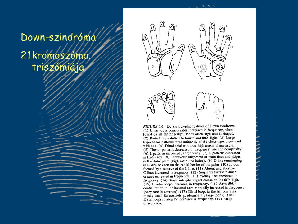 Down-szindróma 21kromoszóma. triszómiája