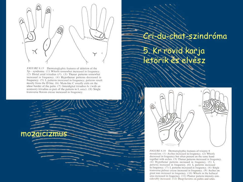 Cri-du-chat-szindróma 5. Kr rövid karja letörik és elvész mozaicizmus