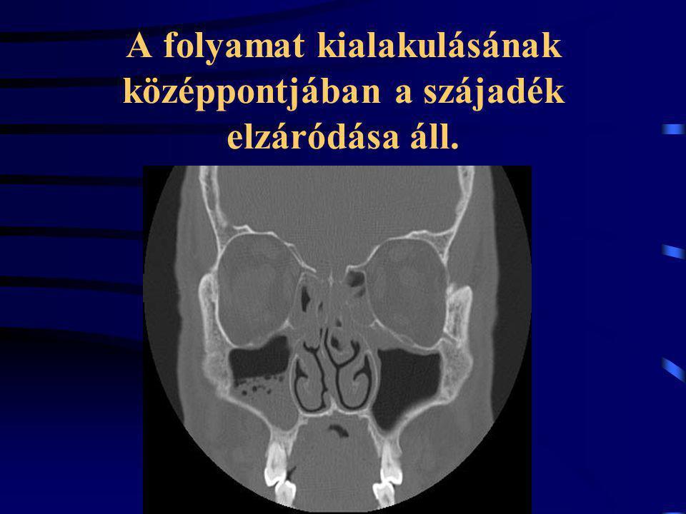 A folyamat kialakulásának középpontjában a szájadék elzáródása áll.