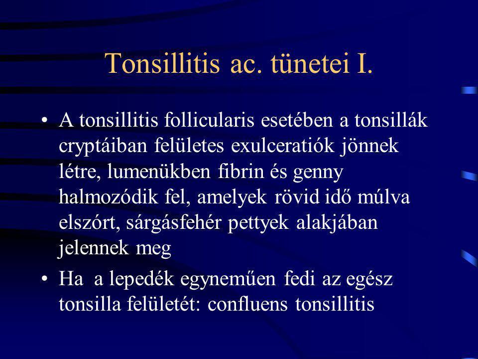 Tonsillitis ac.tünetei I.