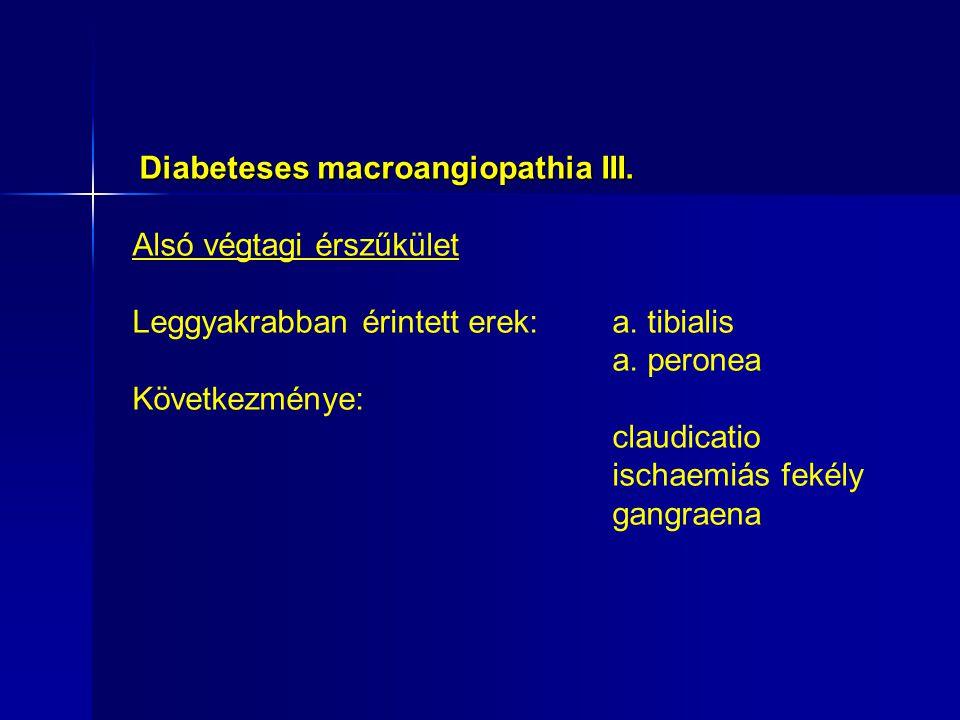 Diabeteses macroangiopathia III.Alsó végtagi érszűkület Leggyakrabban érintett erek: a.