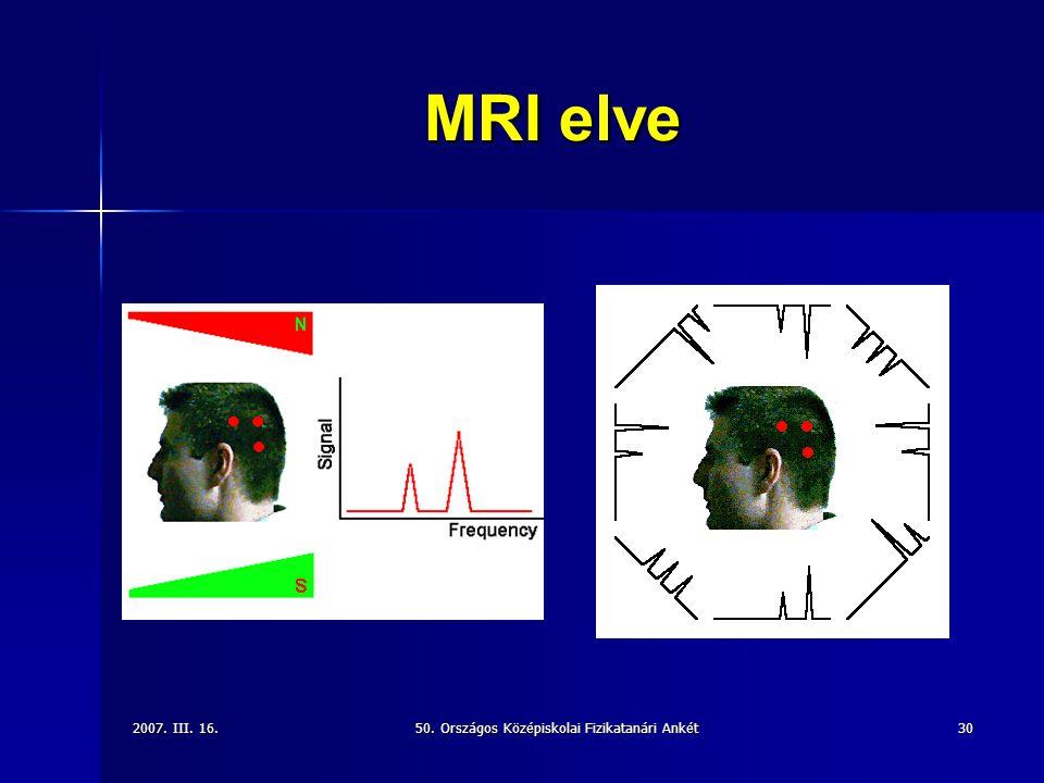 2007. III. 16.50. Országos Középiskolai Fizikatanári Ankét30 MRI elve