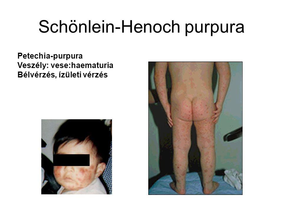 Schönlein-Henoch purpura Petechia-purpura Veszély: vese:haematuria Bélvérzés, ízületi vérzés