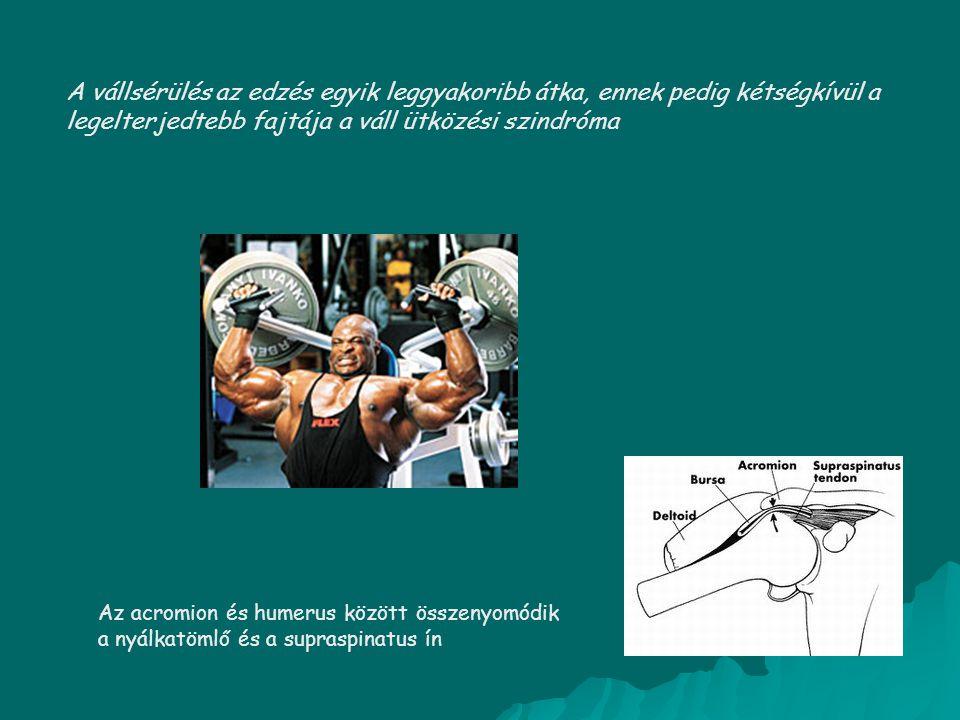 A vállsérülés az edzés egyik leggyakoribb átka, ennek pedig kétségkívül a legelterjedtebb fajtája a váll ütközési szindróma Az acromion és humerus köz