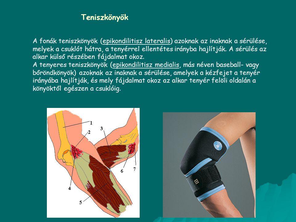 A fonák teniszkönyök (epikondilitisz lateralis) azoknak az inaknak a sérülése, melyek a csuklót hátra, a tenyérrel ellentétes irányba hajlítják. A sér