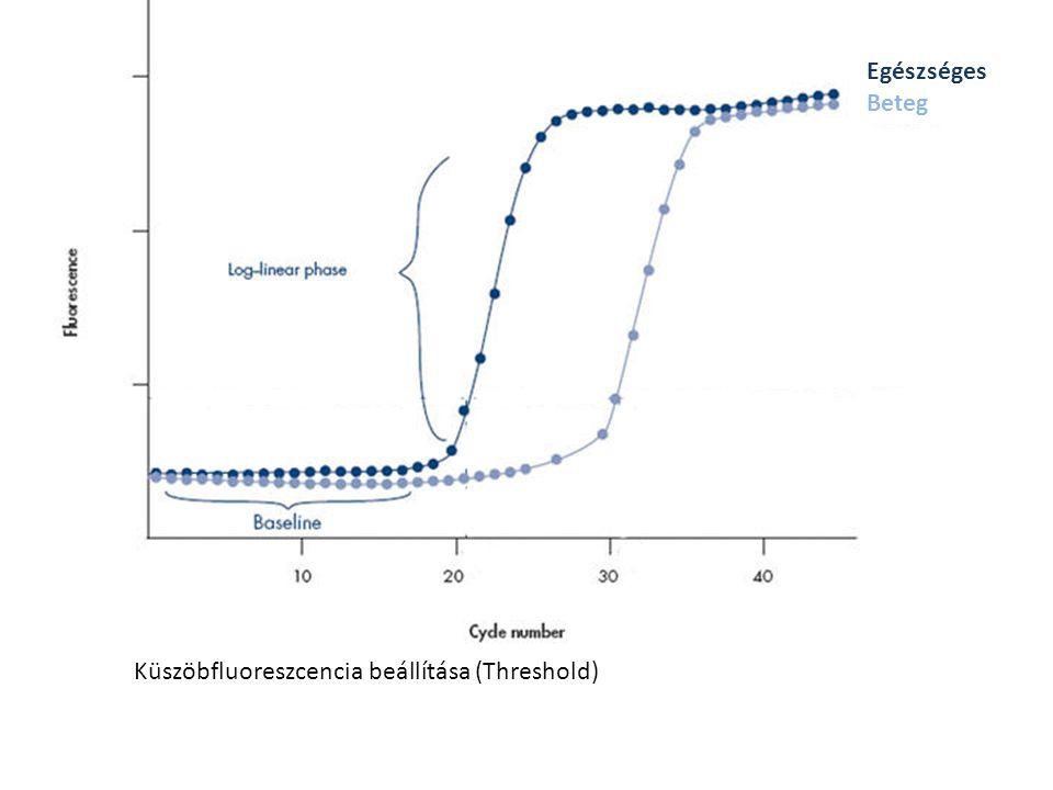 Küszöbfluoreszcencia beállítása (Threshold) Egészséges Beteg