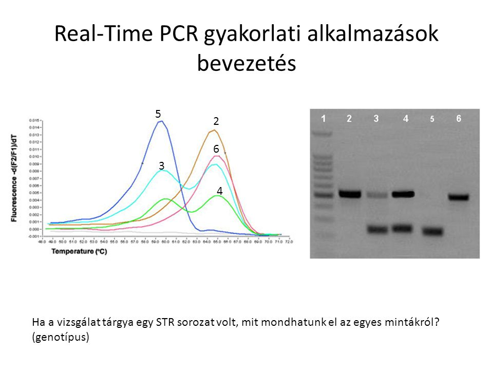 Real-Time PCR gyakorlati alkalmazások bevezetés Az STR-nek 2-típusa fordul elő az 5 vizsgált egyénben 2-es, 6-os: homozigóta, sokszor ismétlődik 3-as, 4-es: heterozigóta 5-ös: homozigóta, kevés ismétlődés 2 3 4 5 6