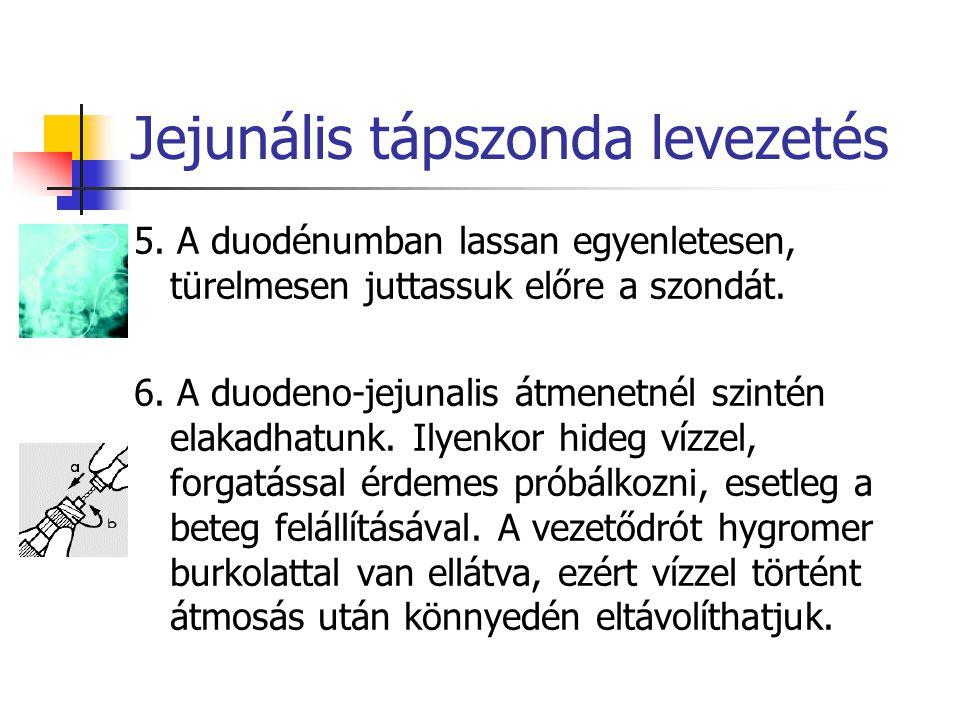 Jejunális tápszonda levezetés 5. A duodénumban lassan egyenletesen, türelmesen juttassuk előre a szondát. 6. A duodeno-jejunalis átmenetnél szintén el