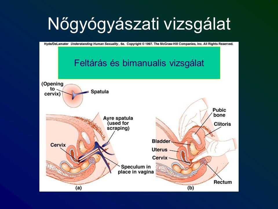 Nőgyógyászati vizsgálat Feltárás és bimanualis vizsgálat