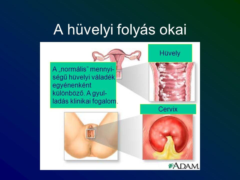 """A hüvelyi folyás okai A """"normális"""" mennyi- ségű hüvelyi váladék egyénenként különböző. A gyul- ladás klinikai fogalom. Hüvely Cervix"""