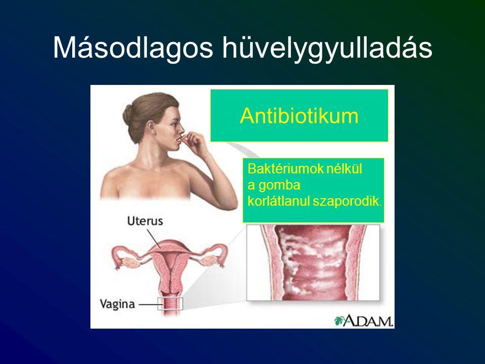 Másodlagos hüvelygyulladás Antibiotikum Baktériumok nélkül a gomba korlátlanul szaporodik.