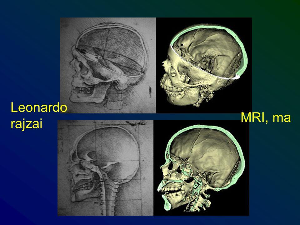 Leonardo rajzai MRI, ma