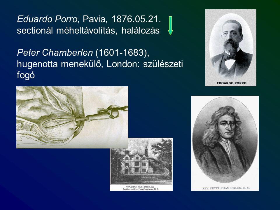 Eduardo Porro, Pavia, 1876.05.21. sectionál méheltávolítás, halálozás Peter Chamberlen (1601-1683), hugenotta menekülő, London: szülészeti fogó